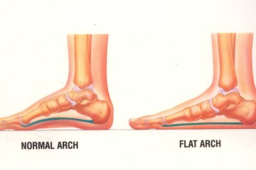 build arches in flat feet