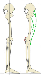 hyperextension of the knees