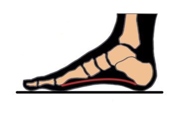 #20 Normal Arched Foot- My Version