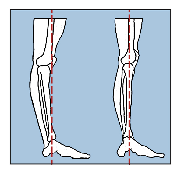 hyperextension of the knee
