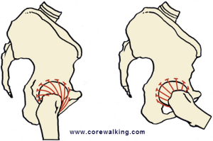 femoral head