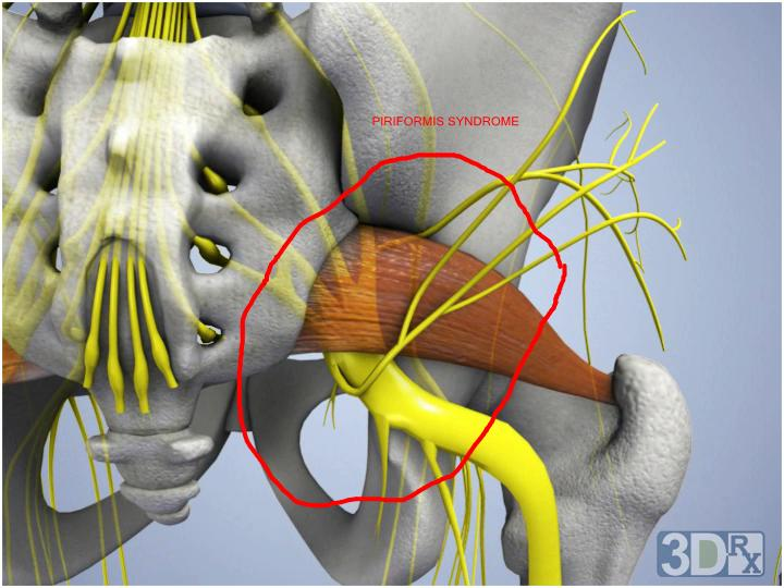 The Sciatic Nerve And Numbness In The Foot