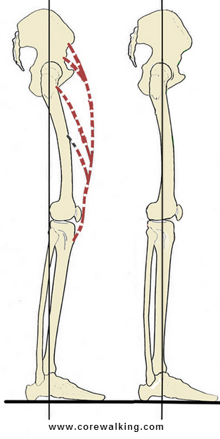 The Painful Relationship Of The Psoas And Rectus Femoris
