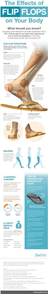 fb0bd50399a health-effects-of-flip-flops-on-your-feet 51f9492836861 w1500 ...