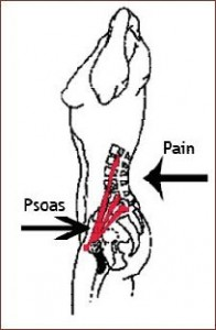 the psoas the lumbar spine and lower back pain