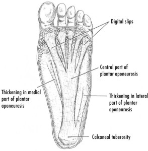 walking plantar fasciitis