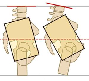 two pelvis side view