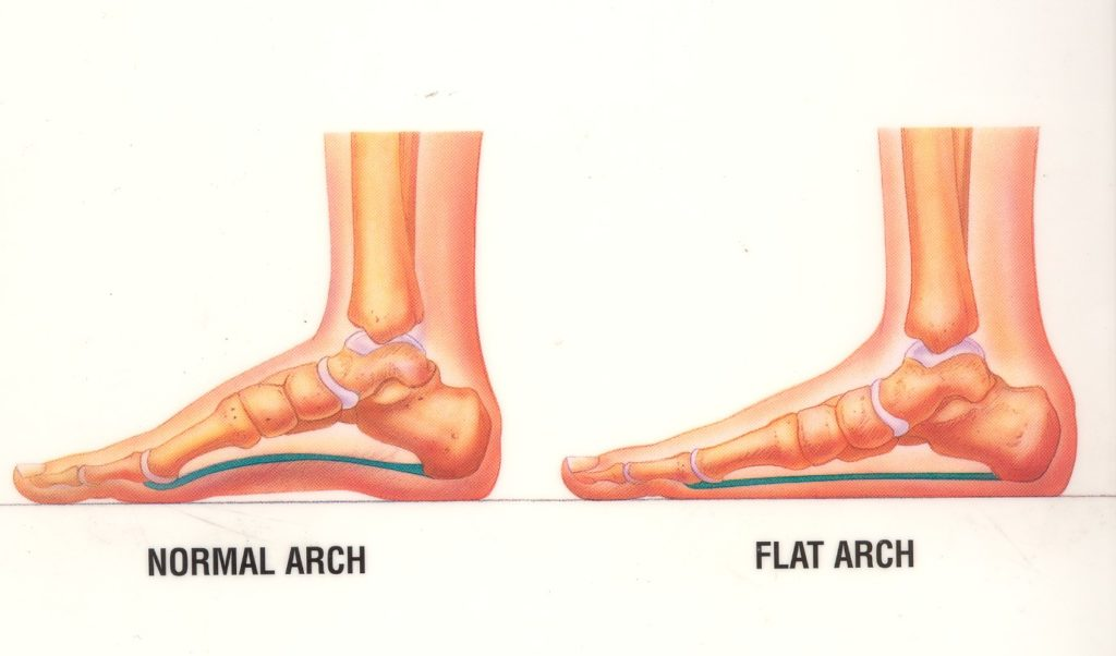 The Best Way to Build Arches in Flat Feet