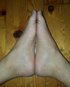 arches of my feet